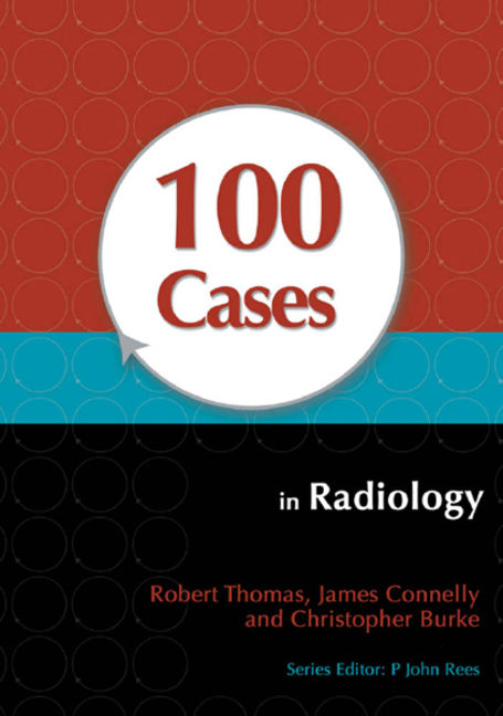100 Cases in Radiology - 9781444149982