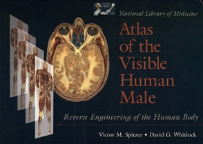 National Library Of Medicine Atlas Of The Visible Human Male: Reverse Engineering Of The Human Body - 9780763702731