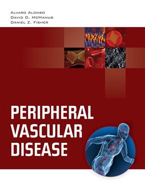 Peripheral Vascular Disease - 9780763755386