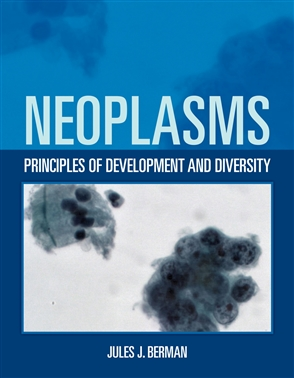Neoplasms: Principles Of Development And Diversity - 9780763755706
