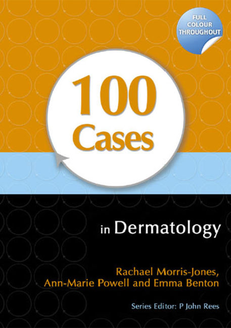 100 Cases in Dermatology - 9781444149845
