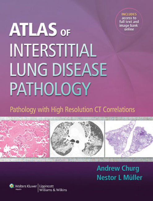 Atlas of Interstitial Lung Disease Pathology - 9781469852843